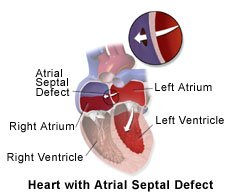 Picture of heart with ASD (Atrial Septal Defect)