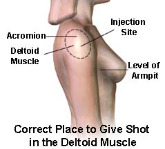 Correct place to Give Shot in the Deltoid Muscle