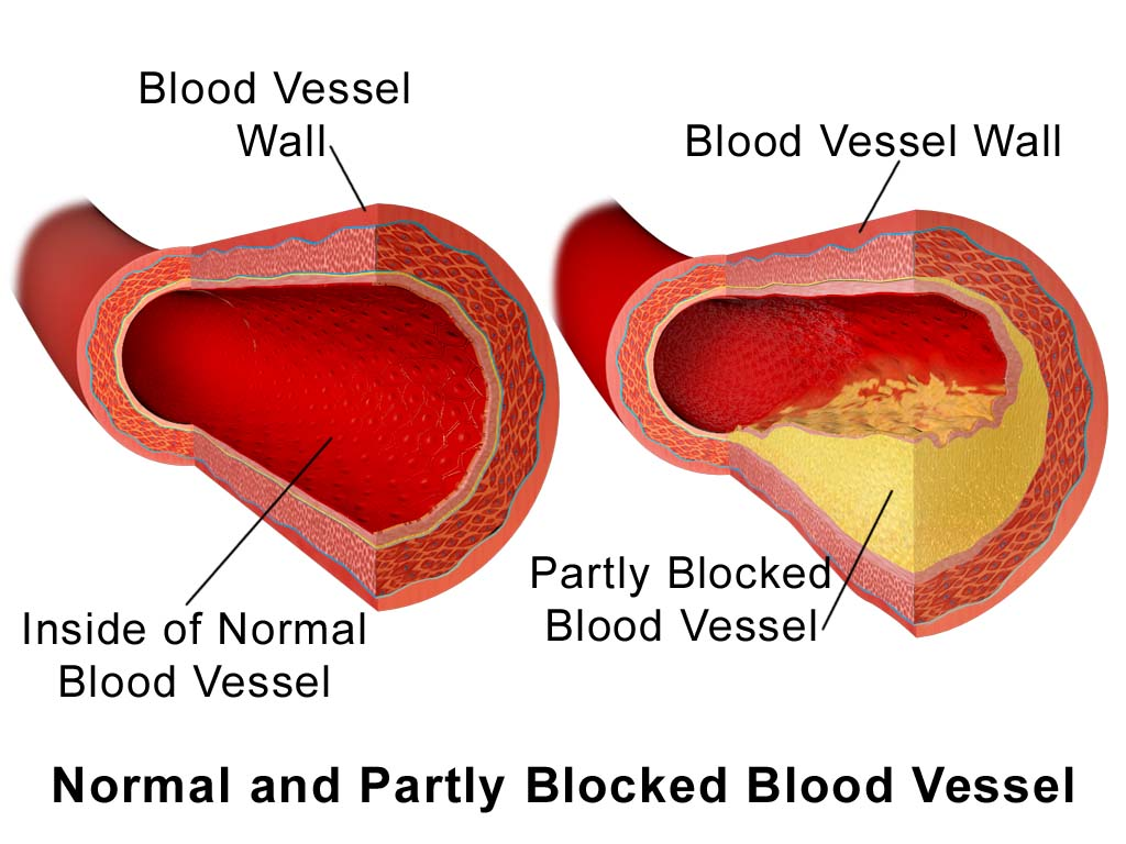 Normal and Partially Blocked Blood Vessel
