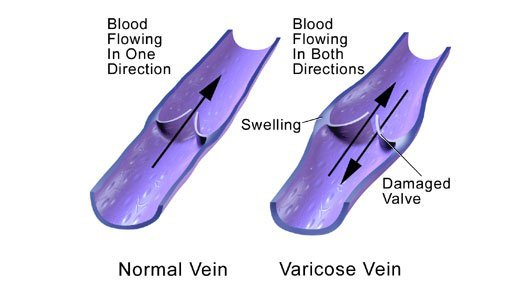 Pictures of a normal vein and a varicose vein