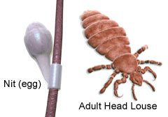 Pictures of a nit and an adult head louse