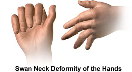 Pictures of swan neck deformity of the hands
