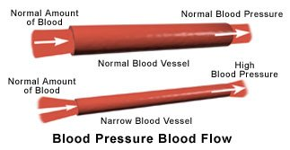 Picture of blood vessels with normal and high blood pressure