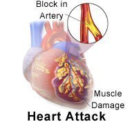Picture of blocked arteries in heart