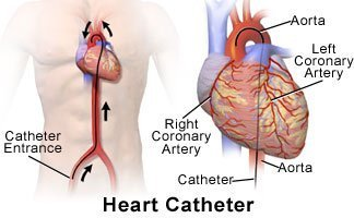 Picture of heart catheterization with catheter threaded up to heart