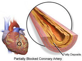 Partially Blocked Coronary Artery