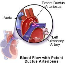 Picture of patent ductus arteriosus and blood flow through the heart