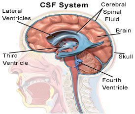 Picture of the brain ventricles and normal cerebral spinal fluid flow