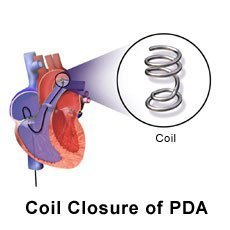 Picture of heart with coil closure of patent ductus arteriosus PDA
