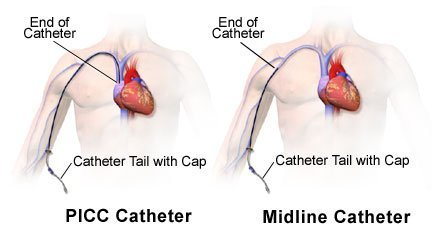 Pictures of Midline and PICC IV Catheters