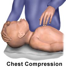 Chest Compression