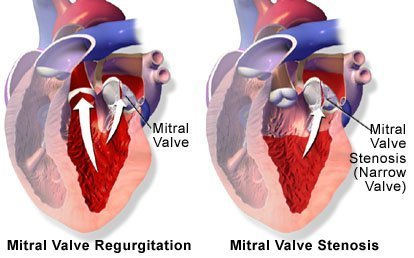Mitral Valve Regurgitation Mitral Valve Stenosis