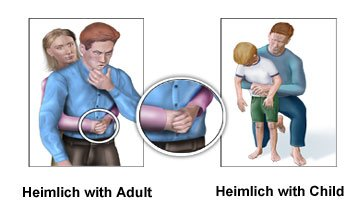 Pictures of the Heimlich maneuver on adult and child