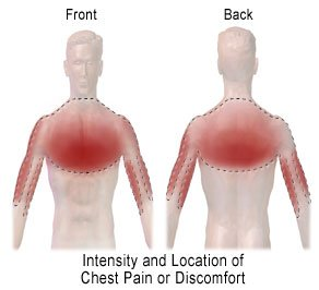 Areas of possible chest pain during a heart attack