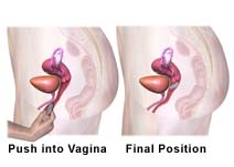 Picture of placing a vaginal ring and the final position