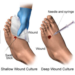 Shallow Wound Culture (picture 1) Deep Wound Culture (picture 2)