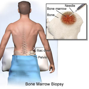 Bone Marrow Biopsy