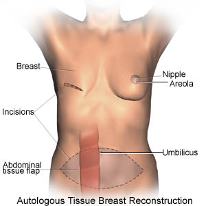 Autologous Tissue Breast Reconstruction