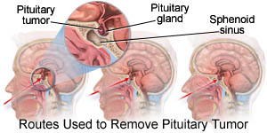 Routes used to remove the pituitary tumor
