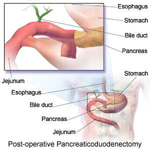 Post-operative pancreaticoduodenectomy