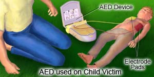 AED used on Child Victim
