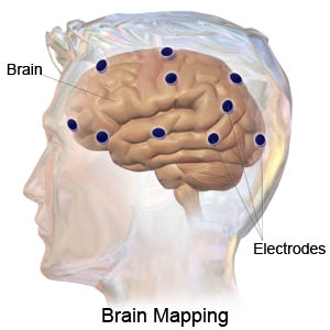 Brain Mapping