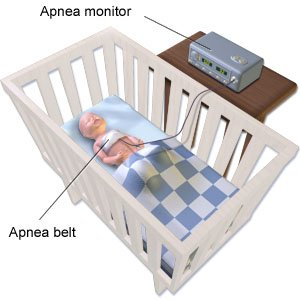 Apnea of prematurity aftercare instructions what you - What you need to know about baby monitors for your home ...