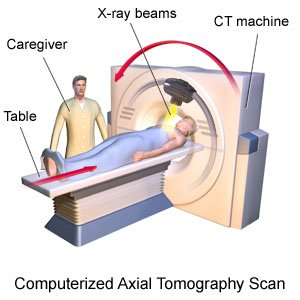 Computerized Axial Tomography Scan