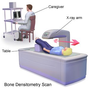 Bone Densitometry Scan