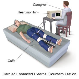 Cardiac Enhanced External Counterpulsation