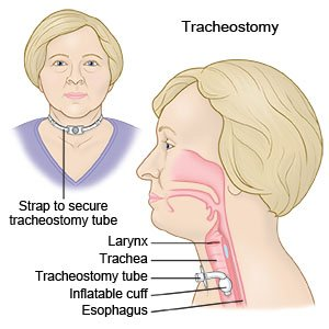 Tracheostomy Care Discharge Care What You Need To Know