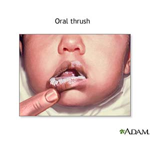 Infant Oral Thrush Pictures
