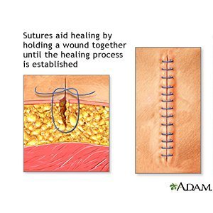 wounds that can not be stitched What can happen if a wound that needs stitches is not stitched, but merely bandaged will it simply take a longer time to heal wounds heal from the bottom up.