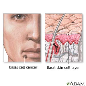 Basal cell cancer Basal skin cell layer