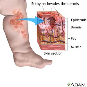Ecthyma invades the dermis