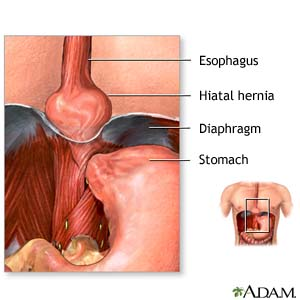hiatal hernia - what you need to know, Cephalic Vein