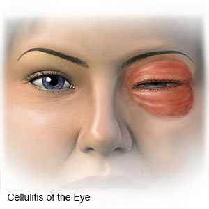 Cellulitis of the Eye