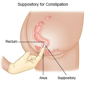 Suppository for Constipation