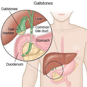 Gallstones - What You Need to Know on