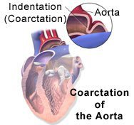 Picture of coarctation of the aorta and blood flow