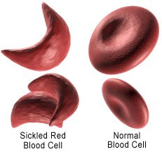 Picture of normal blood cell and abnormal sickle blood cell