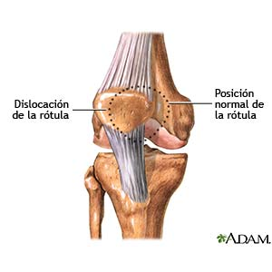 Dislocacion De Rotula Care Guide Information En Espanol