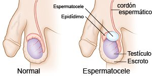 Espermatocele Care Guide Information En Espanol