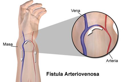 Picture of a surgically created arteriovenous fistula