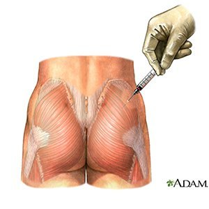 where to inject steroids in your buttocks