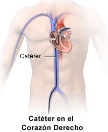 Right Heart Catheter