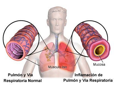Normal Lung and Airway Inflamed Lung and AIrway