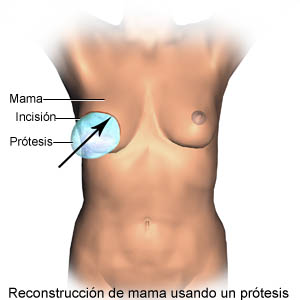 Breast reconstruction using a prosthesis