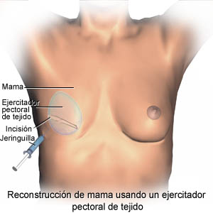 Breast reconstruction using a tissue expander