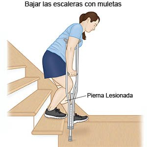 Going Downstairs with Crutches